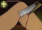 İlkel Bacak Ameliyatı